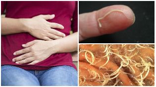 worms in the human body